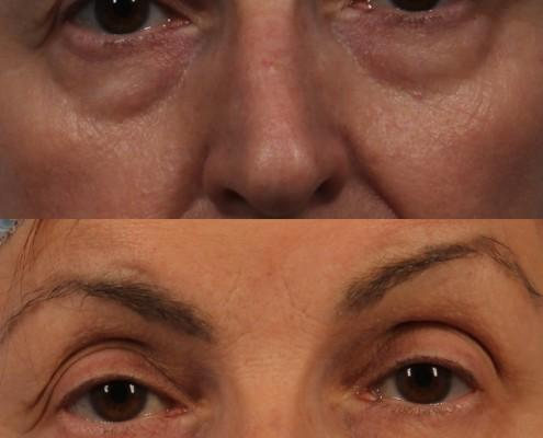 dr. brett kotlus lower eyelid surgery ny