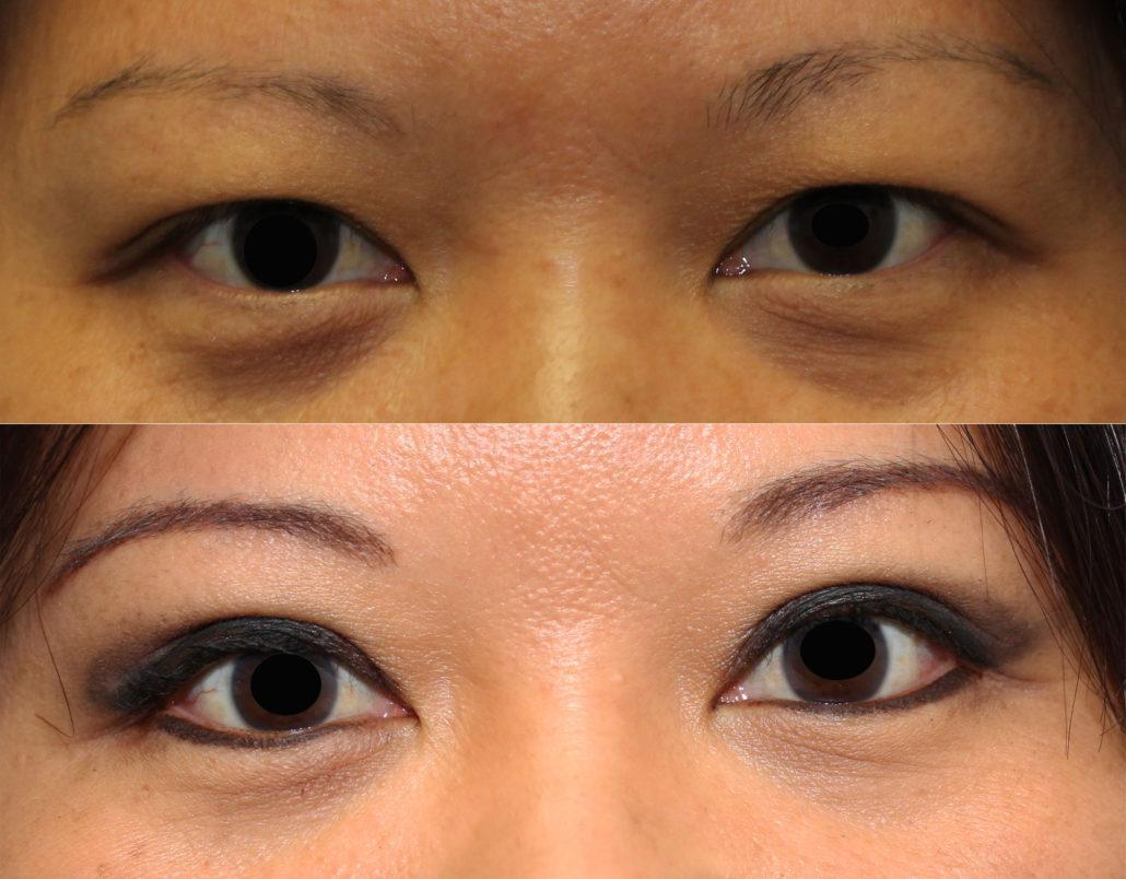 Asian Double Eyelid Surgery Articles 34