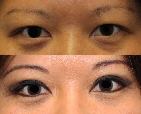 dr. brett kotlus asian double eyelid surgery