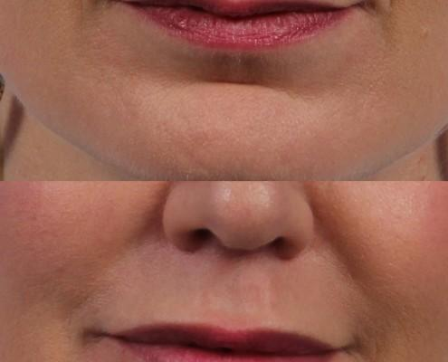 filler lips nyc