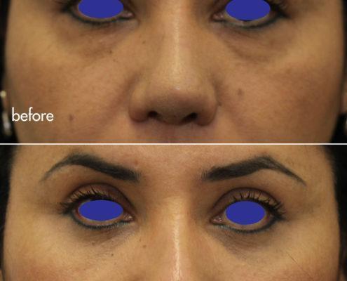 Kotlus Cosmetic Oculoplastic: lower blepharoplasty