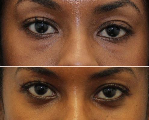 kotlus oculoplastic surgery lower eyelids