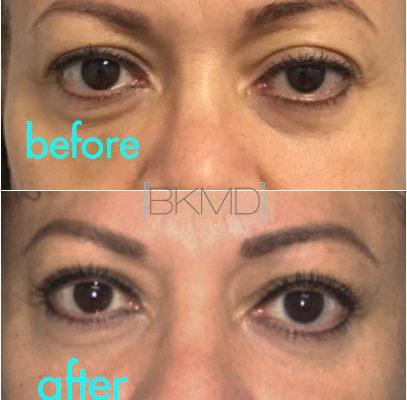 kotlus ptosis and blepharoplasty
