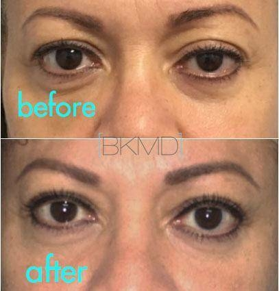 nyc blepharoplasty with ptosis