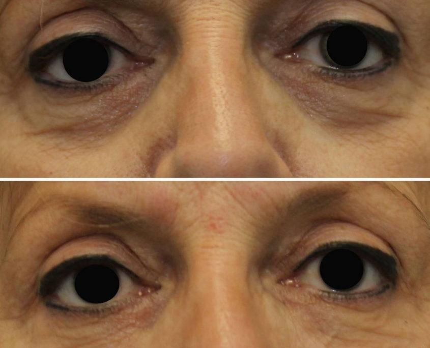 kotlus restylane eyes