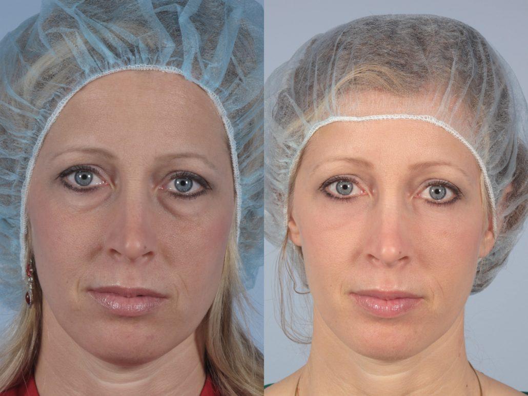 dr. brett kotlus transconjunctival eyelid