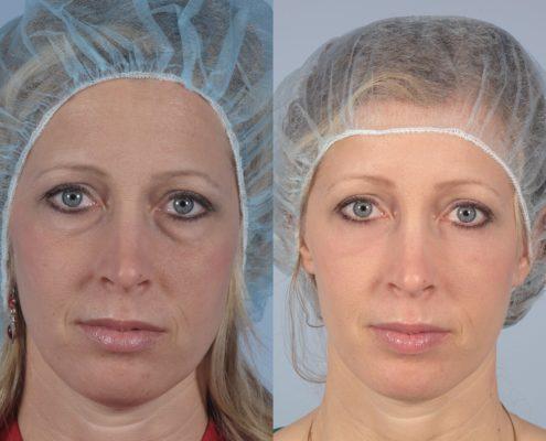 transconjunctival eyelid