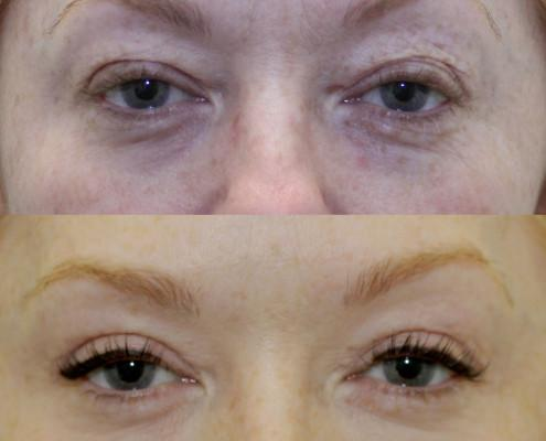 nyc upper eye lift