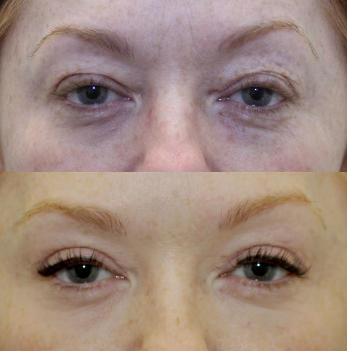 nyc upper eye lift