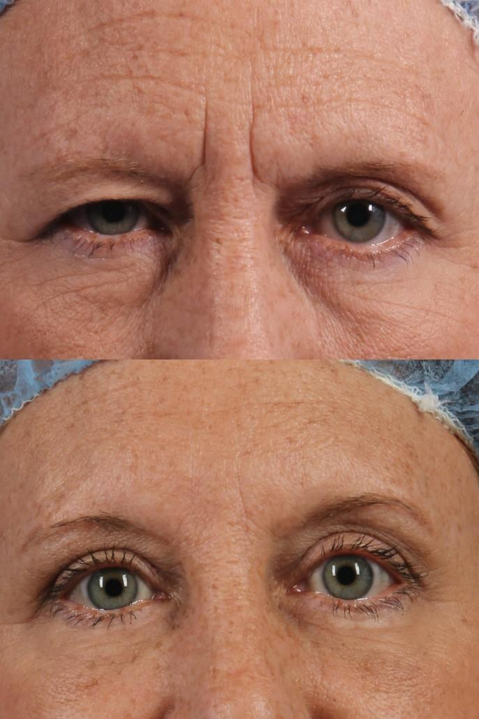 dr. brett kotlus brow lift nyc