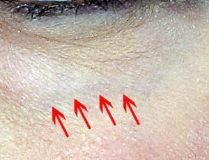 dr. brett kotlus correct eye veins ny