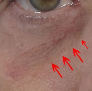 dr. brett kotlus ny oculoplastic dr