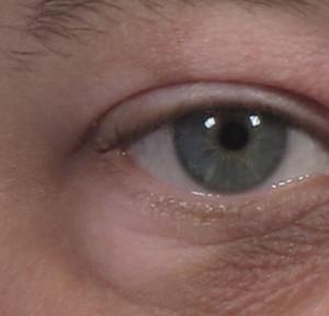 dr. brett kotlus eyelid light skin