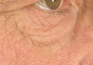 dr. brett kotlus loose skin under eye new york