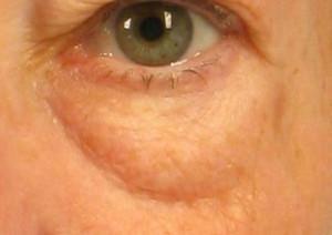 dr. brett kotlus eyelid fat bulging