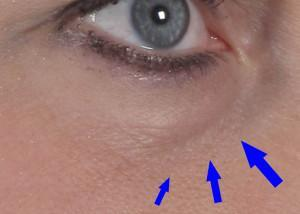 dr. brett kotlus eye hollow ny