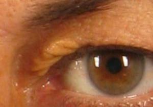 dr. brett kotlus fatty eyelid deposits ny