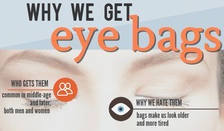 dr. brett kotlus eyelid bags