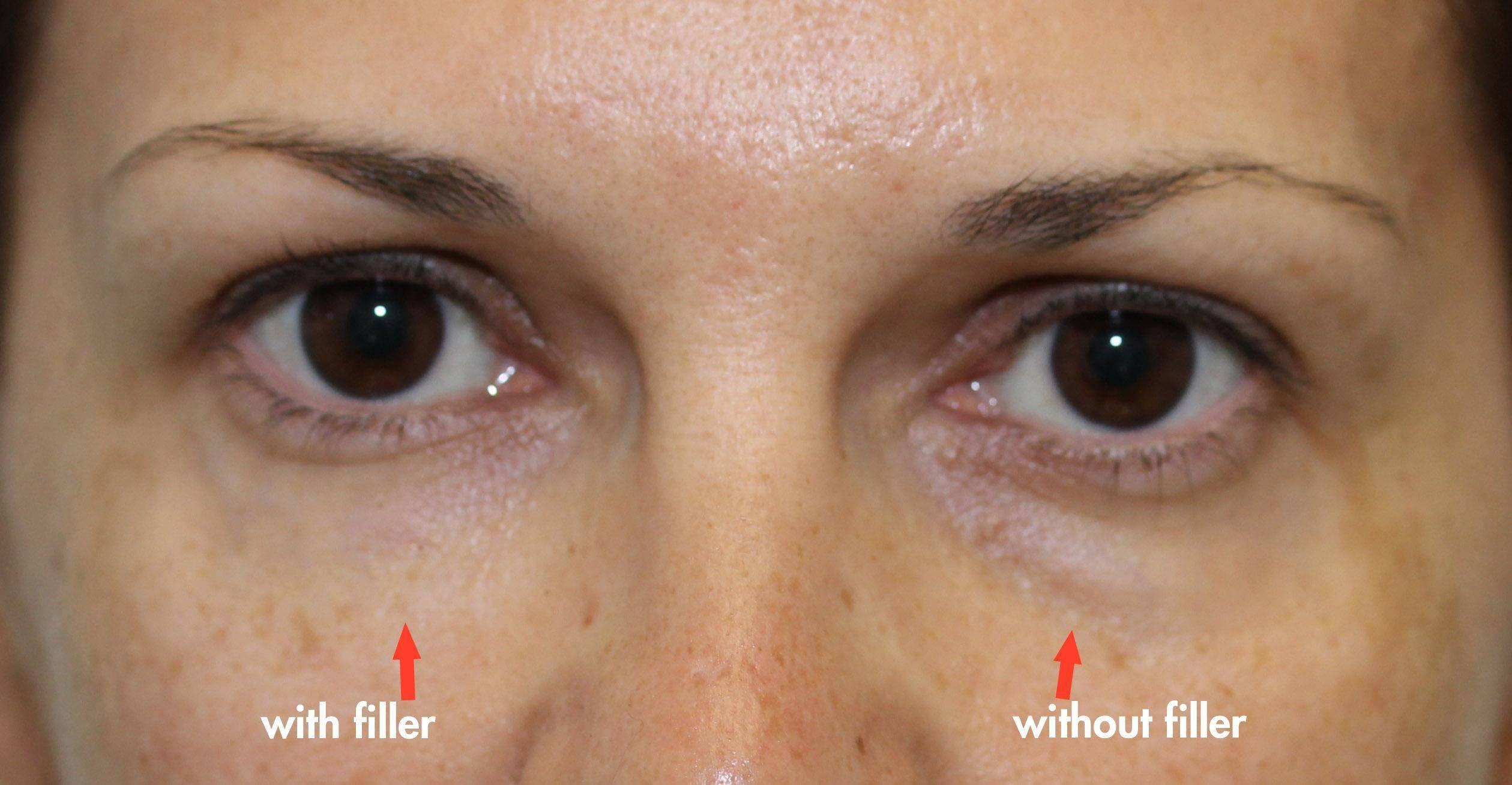 Cannula Tear Trough Filler | Dr  Brett Kotlus, Cosmetic