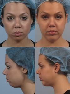 dr. brett kotlus before and after mentoplasty
