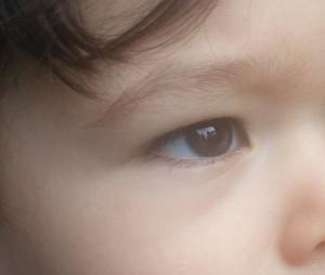 dr. brett kotlus young under eye