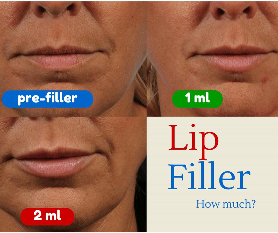 How Much Lip Filler Do I Need? | Dr  Brett Kotlus, Cosmetic