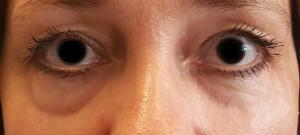 dr. brett kotlus cannula eye bags