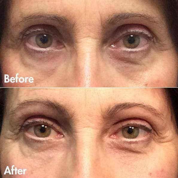 dr. brett kotlus upper eyelid restylane