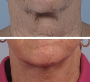 dr. brett kotlus neck lift ny
