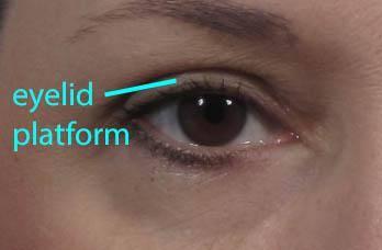 dr. brett kotlus eyelid shelf