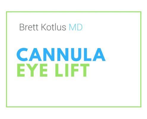dr. brett kotlus cannula eye restylane