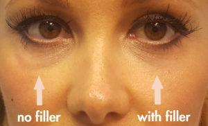 cannula eye lift