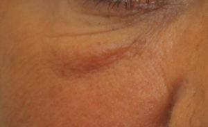 filler eye bags