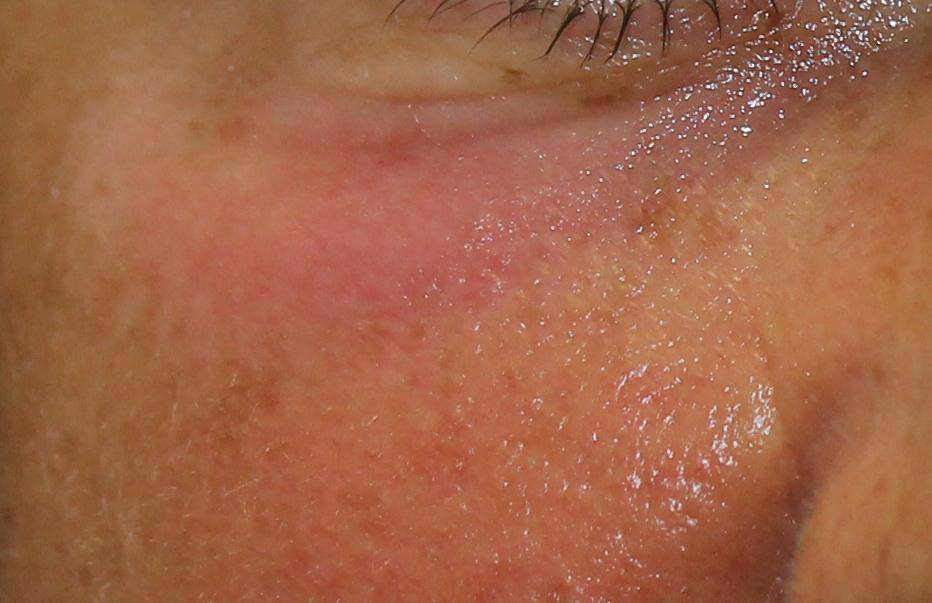Solution: Puffy Under Eyes After Filler Injection | Dr