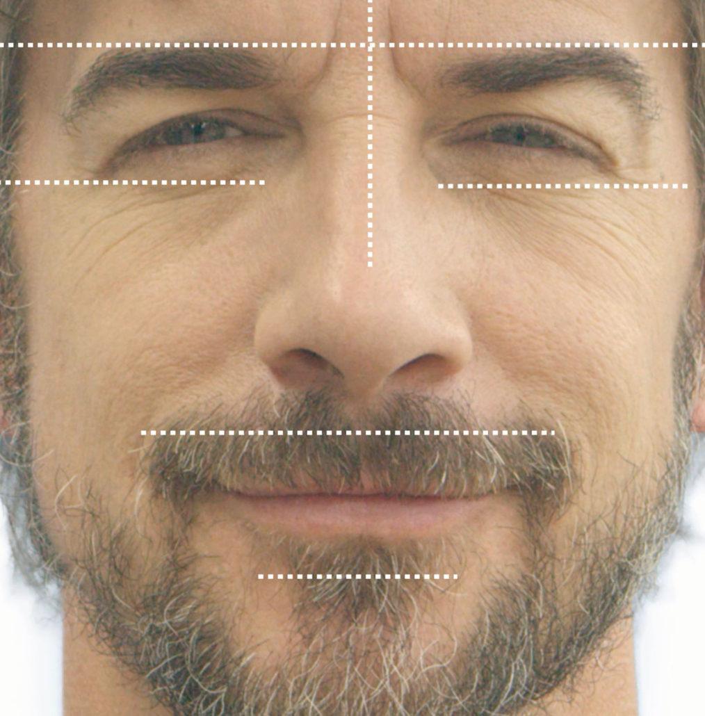eyelid balance