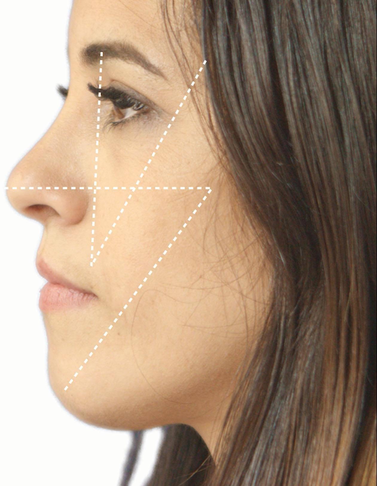 kotlus eye balance blepharoplasty