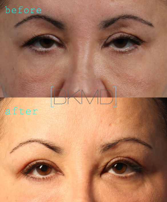 upper eyelid lift nyc