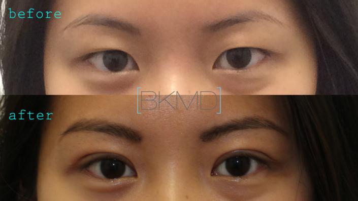 Primary Double Eyelid