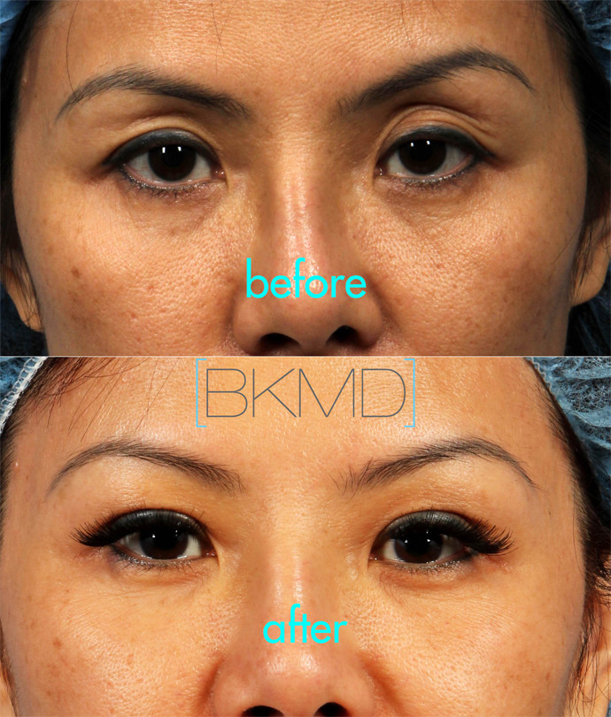 Asian Double Eyelid Surgery | Dr  Brett Kotlus, Cosmetic