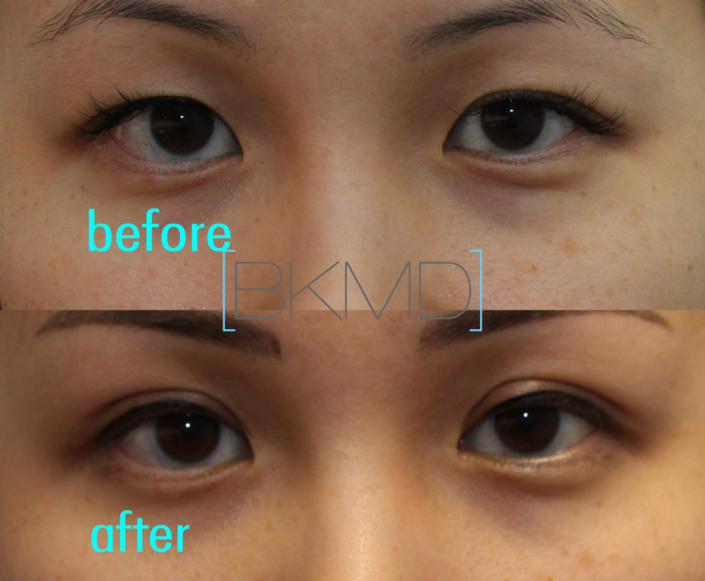 Primary Double Eyelid Surgery