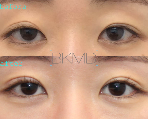 Revision Double Eyelid Ptosis Repair