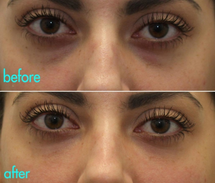 Remove under-eye bags with a Cannula bag lift by Dr. Kotlus