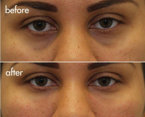 Reverse the effects of dark under-eye bags with Dr. Kotlus' Cannual treatment