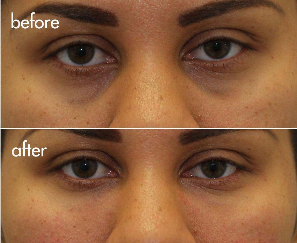 dark circles filler nyc