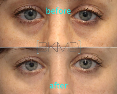 Cannula Eye Treatment Without Surgery