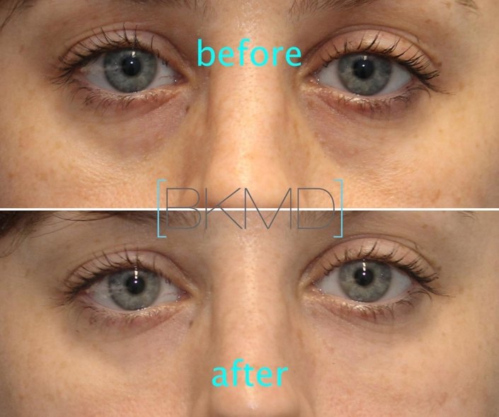 Cannula Eye Treatment nyc