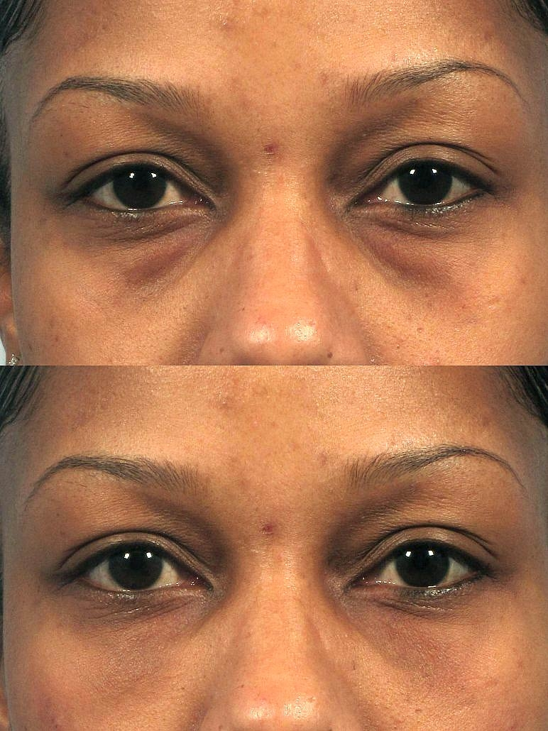 Under eye bag removal with Dr. Kotlus' Cannula filler treatment