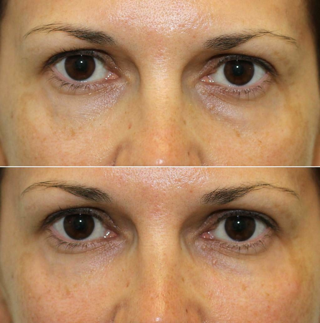 Dr. Kotlus undery-eye Cannula treatment remove years from your skin