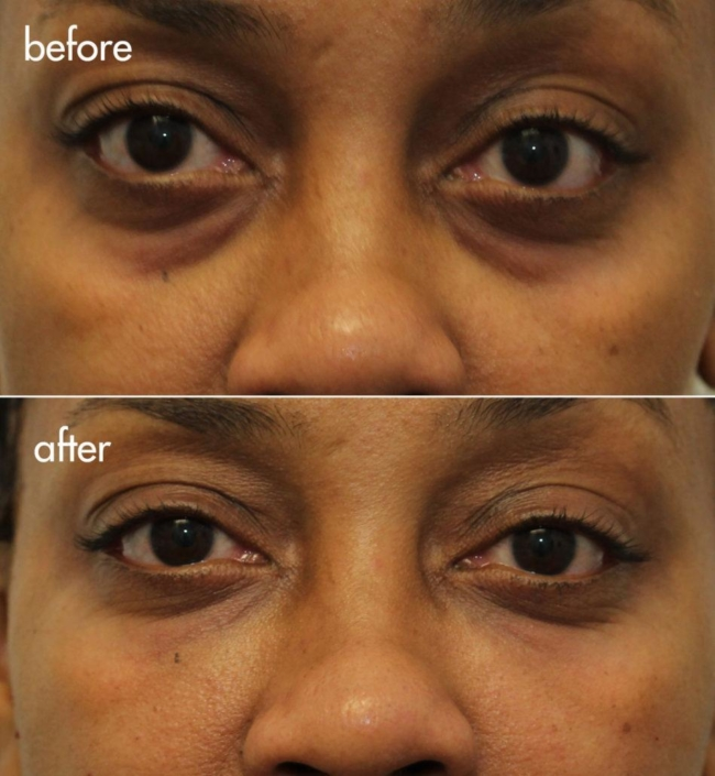 Dr. Kotlus Cannula Under Eye Treatment