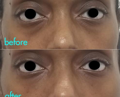 Dr. Kotlus under eye filling trough treatment